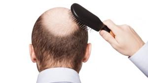 shutterstock_bald-1168x657